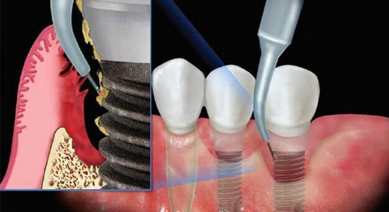 Чистка импланта зуба
