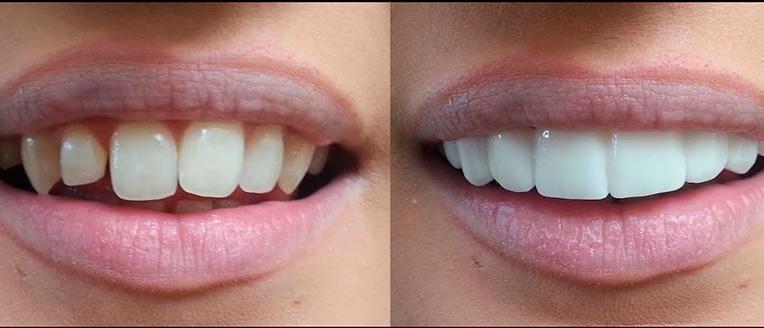 до и после лечения стоматолога