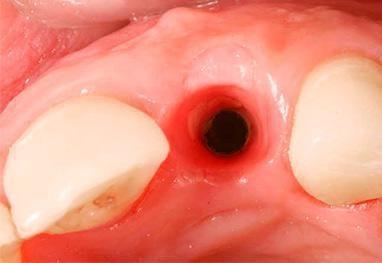 покраснение лунки зуба
