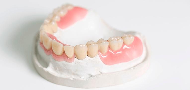 съемный зубной протез трех зубов
