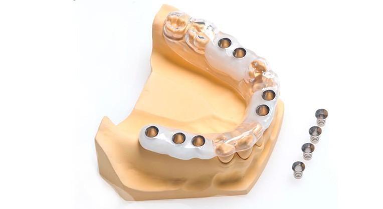 шаблон имплантации зубов