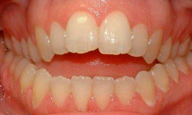 зубной прикус