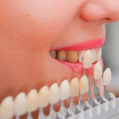 зубные виниры