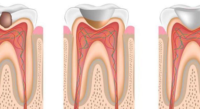плмбирование зубов