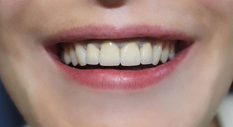 зубная керамика