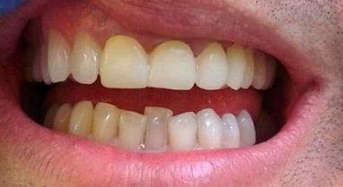 Скрученность зубов