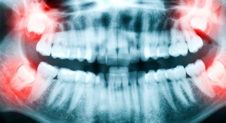Рентгеновский снимок зубов