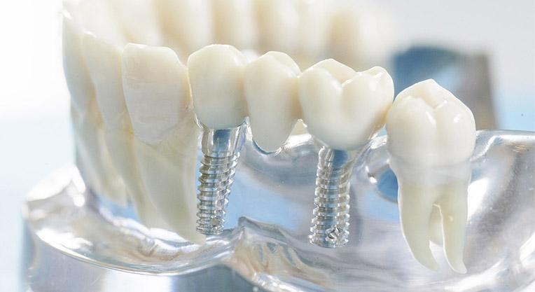 модель зубных имплантов