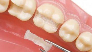 керамическая зубная вкладка
