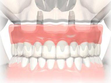 зубной протез на четырех имплантах