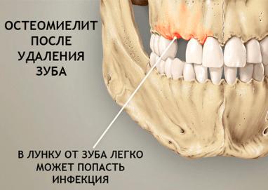 остеомиелит зубов