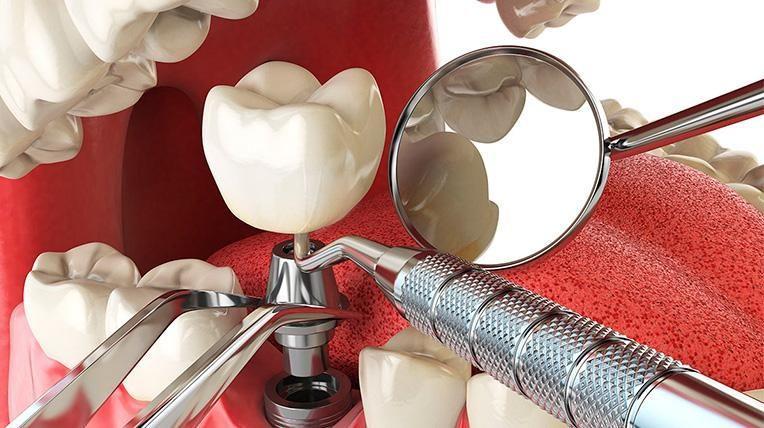 имплант зуба