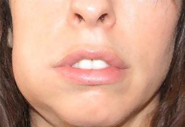 отек десны зуба