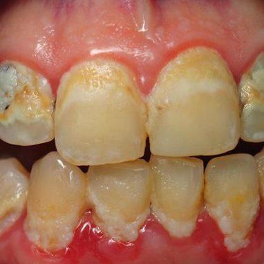 зубной налет и кариес