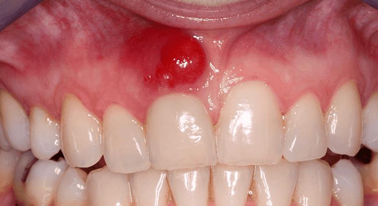воспаление десны над корнем зуба