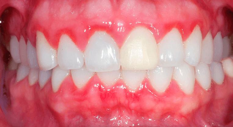 гингивит зубов