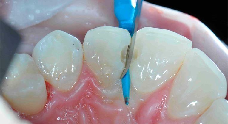 Сепарация зуба