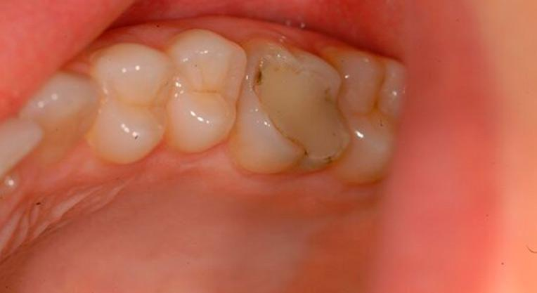 зубная пломба