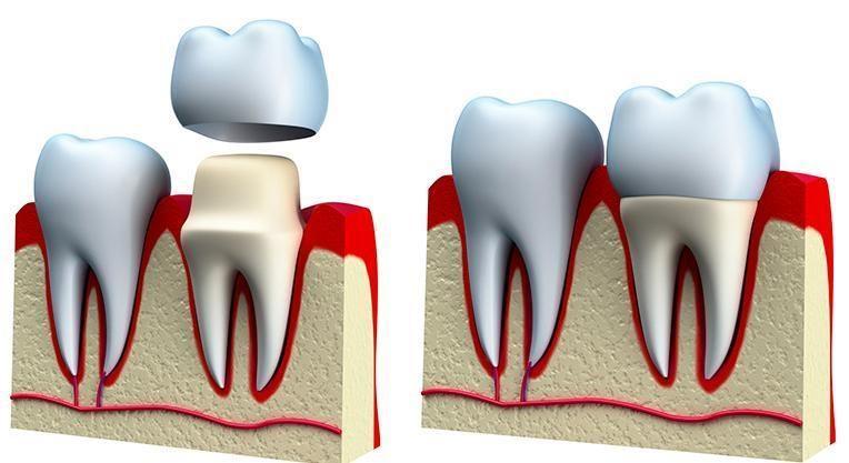 зуб подготовленный под коронку