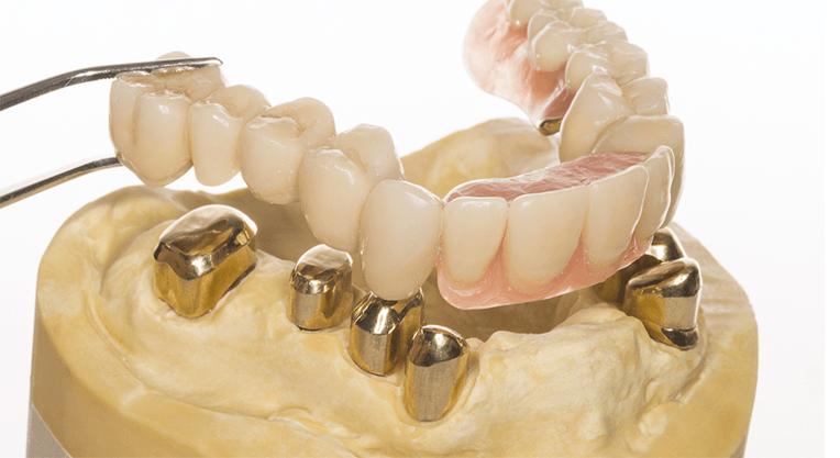 Опорные зубы и протез
