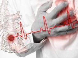 Перенесенный инфаркт