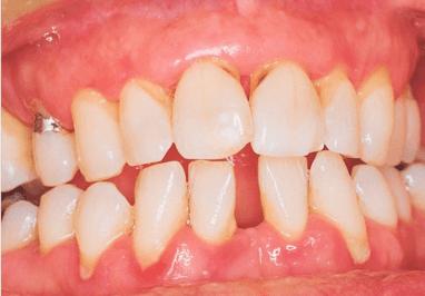 Воспаление костных тканей