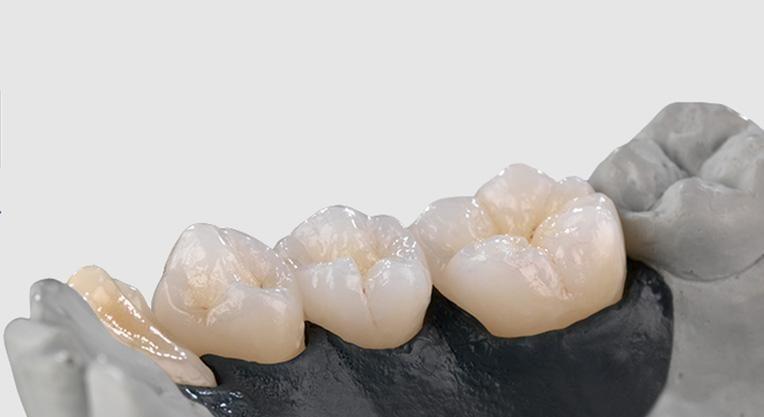зубные коронки - Алюминий