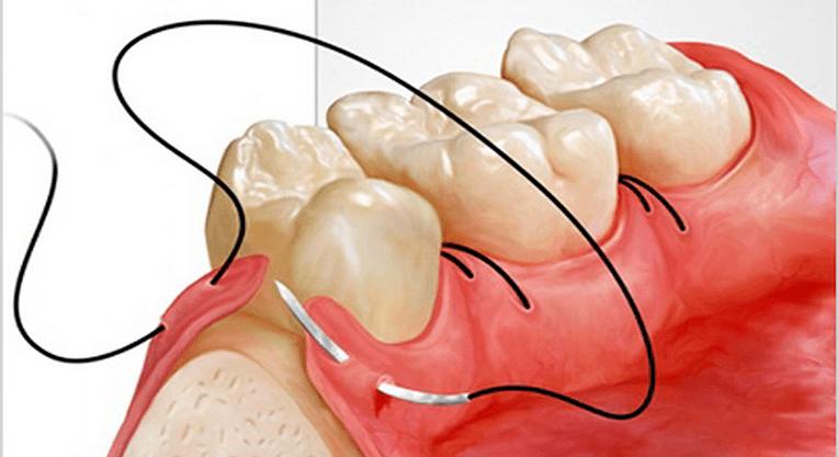 зашиваем десну зуба