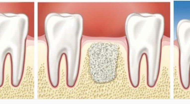 Наращивание костной ткани на нижней челюсти с последующей имплантацией.
