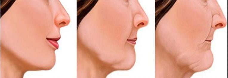 изменение формы лица из за отсутствия зубов