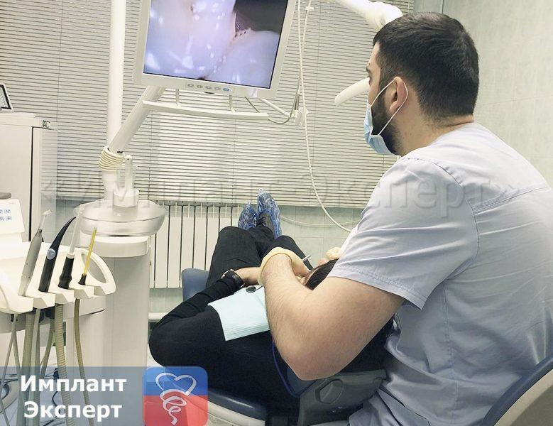 Лечение зубов под цифровым микроскопом