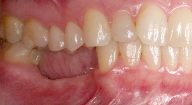 Атрофия нижней челюстной кости.
