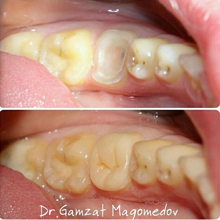 Восстановление зуба до и после