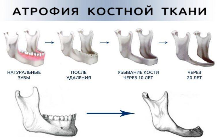 Атрофия костной ткани в схеме