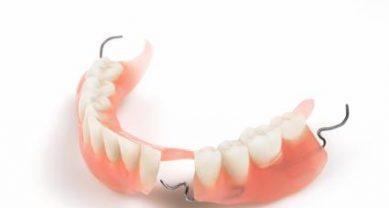Частичный зубной протез