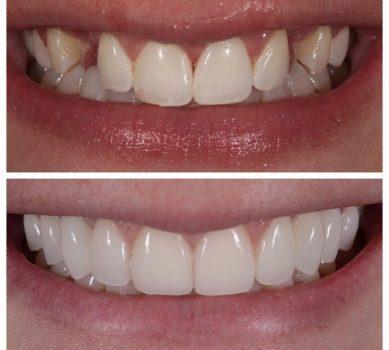 Виниры E-max на кривые зубы