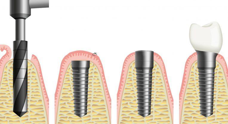Как происходит имплантация зуба