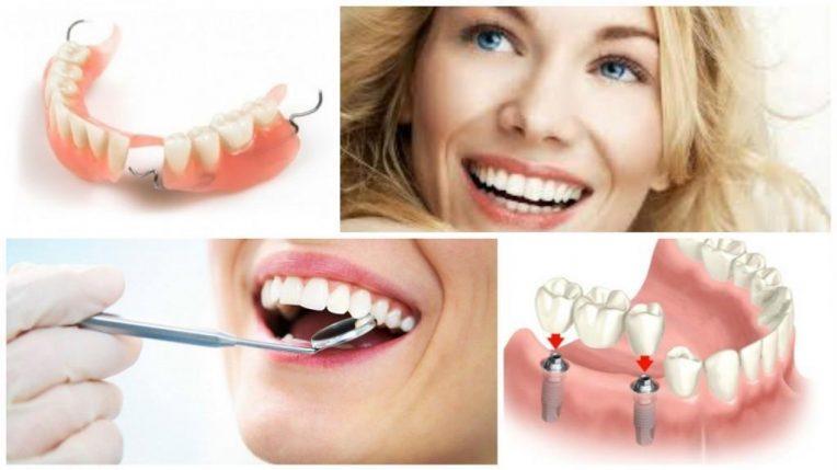 пациент стоматологии улыбается