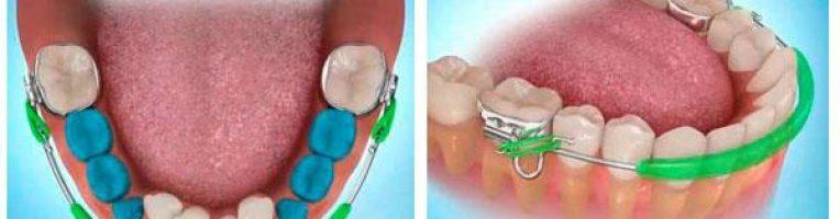 ортодонтический губной бампер на зубах