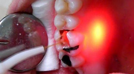Лазерное лечение кисты