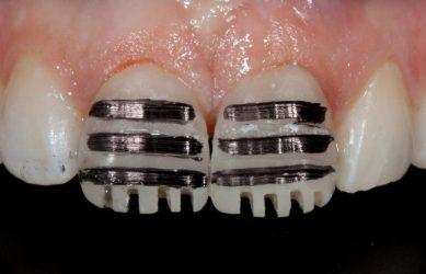 Обточка зубов перед установкой виниров