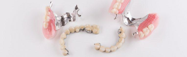 Разновидности зубных протезов