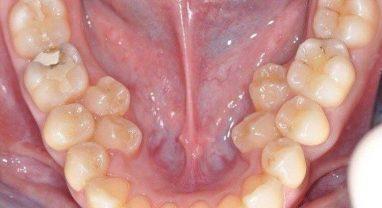 Сверхкомплектность зубов