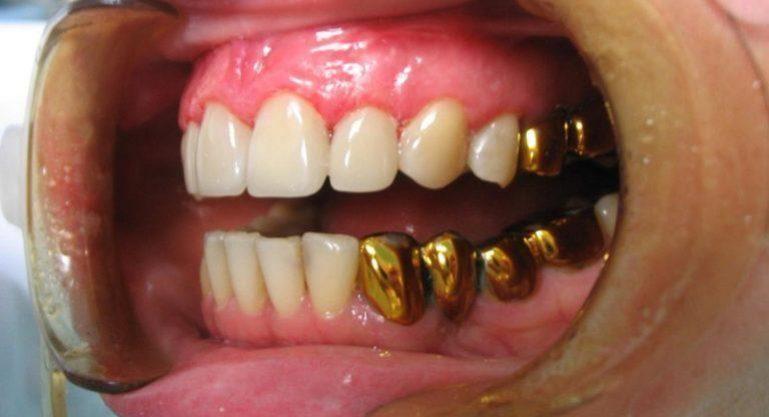 Установленные золотые коронки