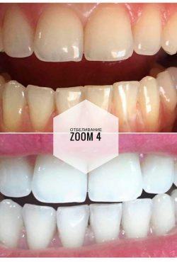 Отбеливание Zoom 4