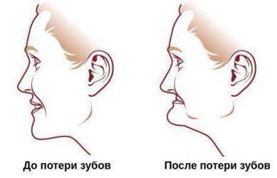 ассиметрия лица при отсутствие резцов