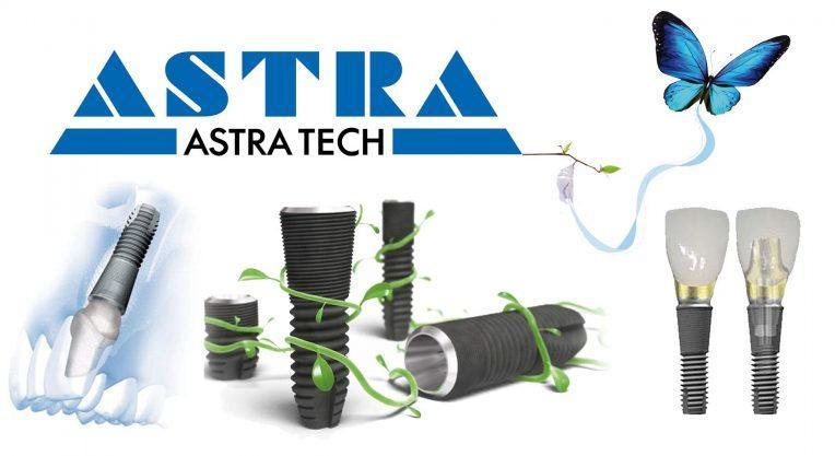 Имплант Astra Tech