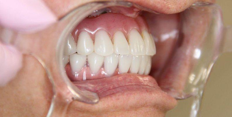 Зубы пациента стоматологии установленные за один день