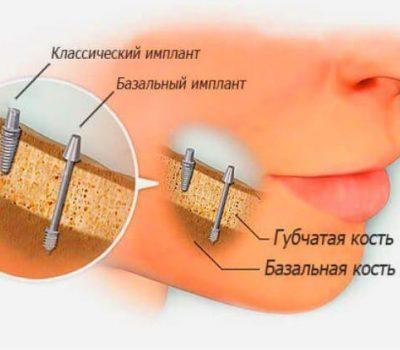 Базальная имплантация