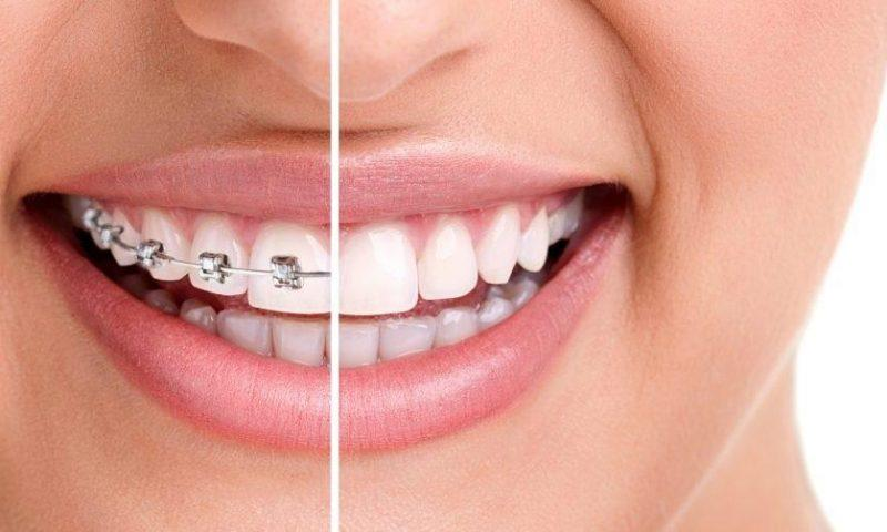 braces-before-after-1200x50311 — копия